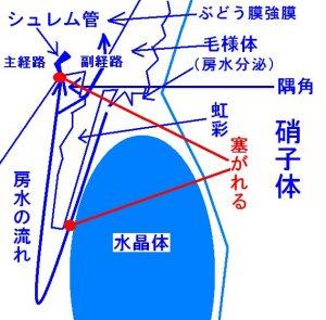 房水の流れと排出経路の詰まり