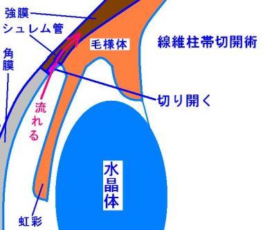 線維柱帯切開術の解説