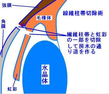 線維柱帯切除術の解説