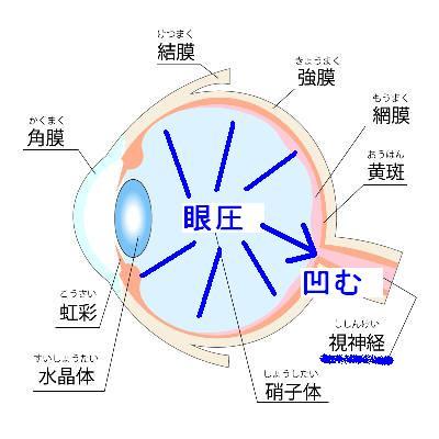 眼圧の上昇と視神経障害